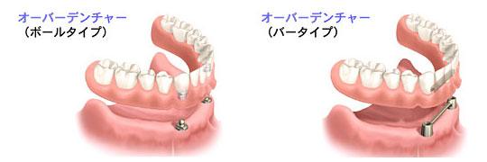 まるで「自分の歯」のようにしっかり噛みやすい入れ歯