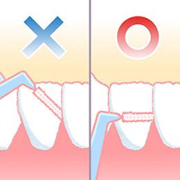 歯科医院でのクリーニング