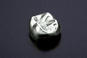 金銀パラジウム合金(保険適用)