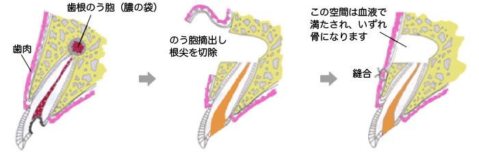 「歯根端切除」などの難しい症例にも対応